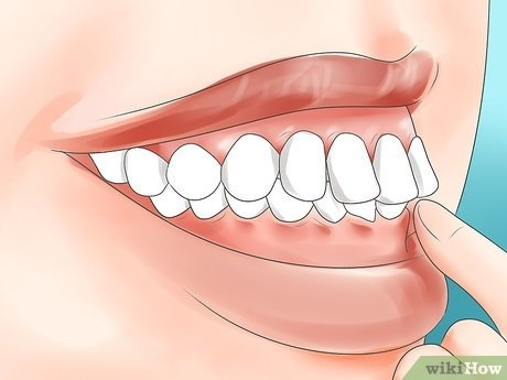 how to get braces when you don t need them-1