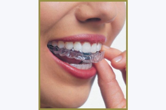 how to get braces when you don t need them-3